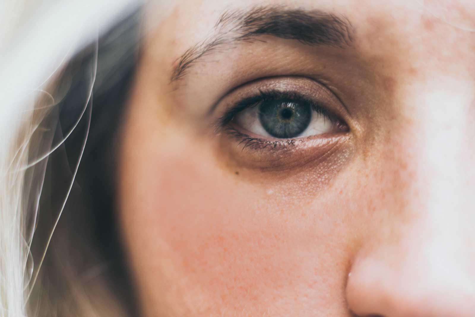 Göz Altı Morlukları İçin Basit Yöntemler