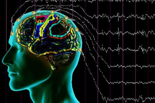 Epilepsi çeşitleri nelerdir