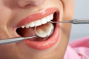Diş çürüğünün neden olduğu hastalıklar